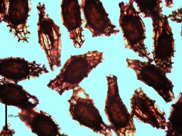 PHOTO: A compound light microscope reveals some plump, fertile embryos inside seeds