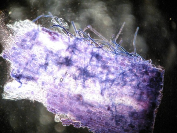 PHOTO: Orchid tissue microscopy at 100x.